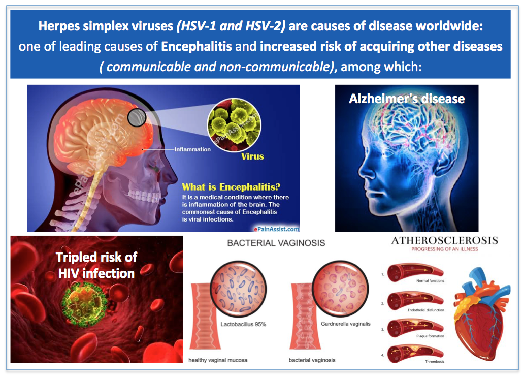 HSV and TB – Vaxxit